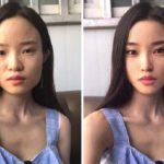 Chirurgia plastyczna w Chinach